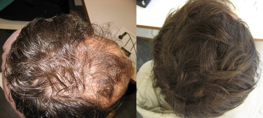 Antes e Depois tratamento Clinica Tricosalus