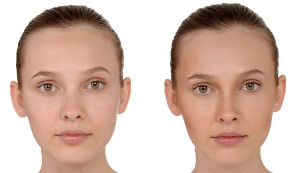 Como diminuir ou afinar o nariz?