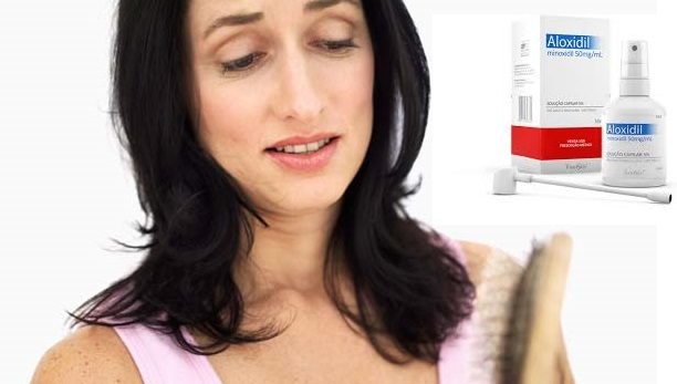 Minoxidil Funciona? - Resultados e Efeitos Colaterais