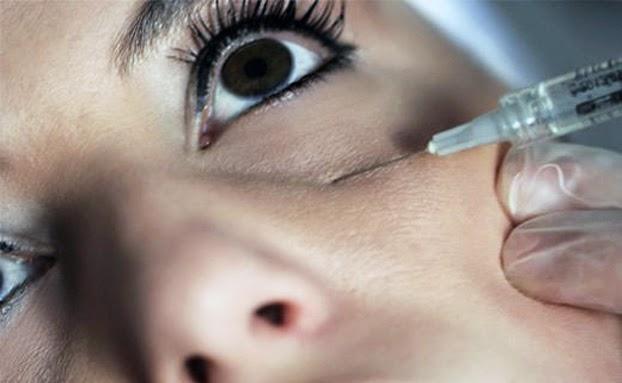 dicas-para-amenizar-e-acabar-com-as-olheiras-cirurgia