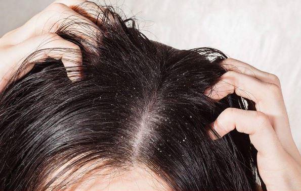 porque-o-cabelo-afina-caspa