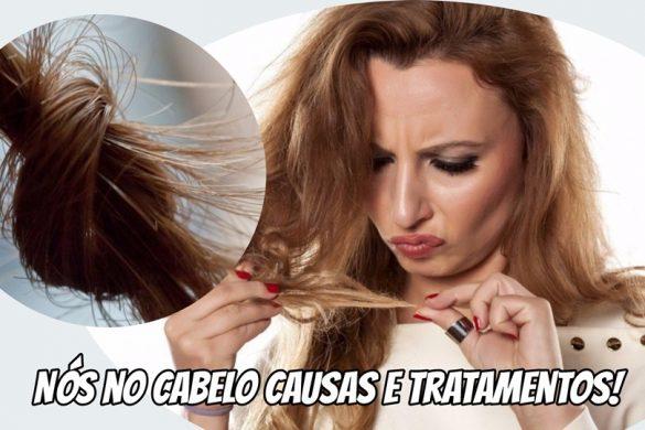 triconodose-nos-no-cabelo-porque-eles-surgem-causas-e-tratamentos