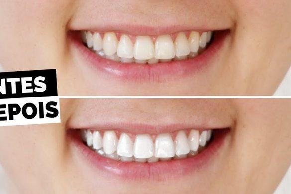 dez-maneiras-de-clarear-os-dentes-em-casa-naturalmente-em-dois-minutos