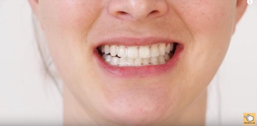 dez-maneiras-de-clarear-os-dentes-em-casa-naturalmente-em-dois-minutos-bicarbonato-sodio-vinagre-aplicacao-mistura