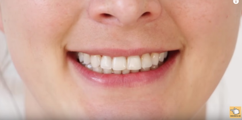 dez-maneiras-de-clarear-os-dentes-em-casa-naturalmente-em-dois-minutos-morangos-pasta-de-dente-escova-aplicacao