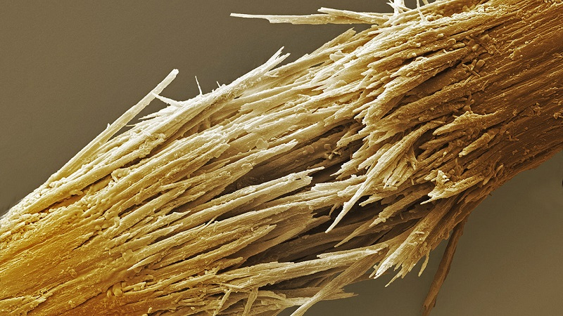 Damaged human hair shaft SEM