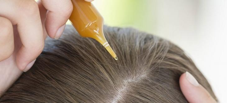 o-que-fazer-quando-o-cabelo-esta-caindo-muito-tonico-capilar