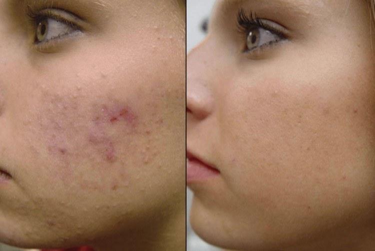 peeling-de-diamante-e-bom-acne