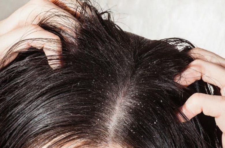 caspa-shampoo