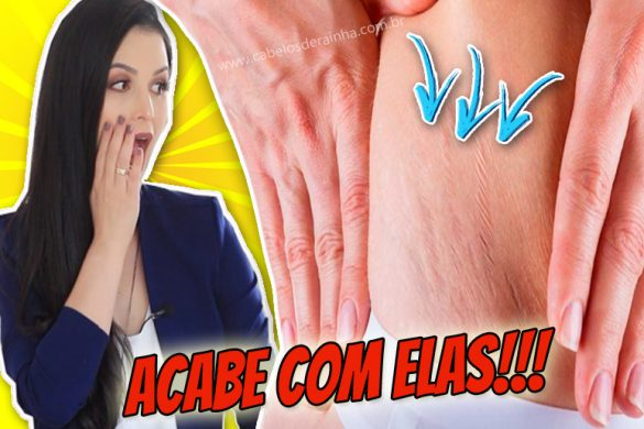 peeling-caseiro-para-combater-as-estrias