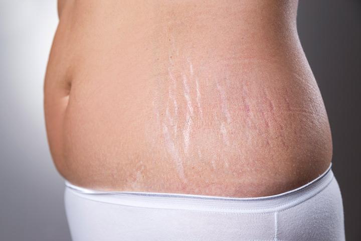 peeling-caseiro-para-combater-as-estrias-cicatriz