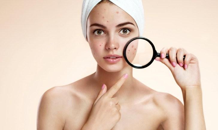 pele-oleosa-como-escolher-o-hidratante-correto-e-como-cuidar-espinhas