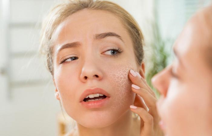 pele-seca-do-rosto-como-hidratar-e-cuidar-ressecamento